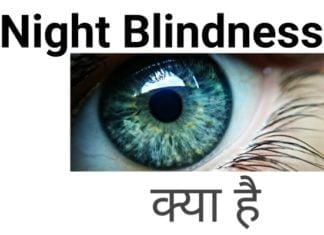 ( रतौंधी ) Night blindness क्या है